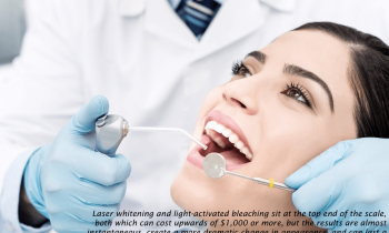 cost-teeth-whitening