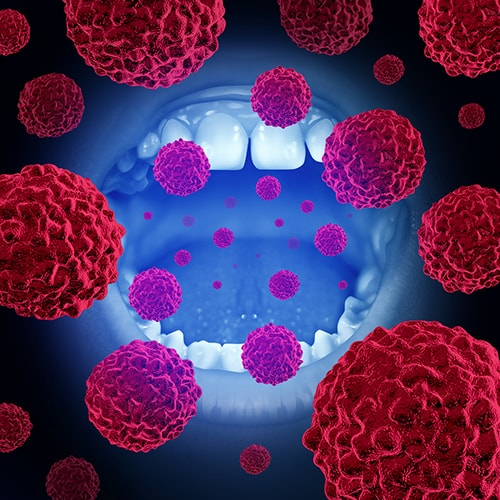 Oral cancer cells to represent our committment to do oral cancer screenings