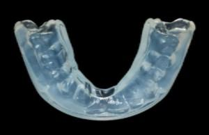 An example of a mouthguard