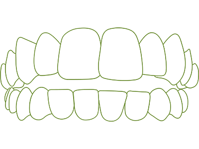 Icon of gapped teeth