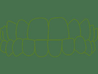 Icon of gapped teeth