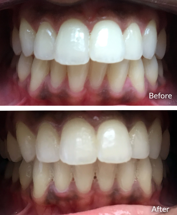 Indu Vanteru, before and after Invisalign treatment.