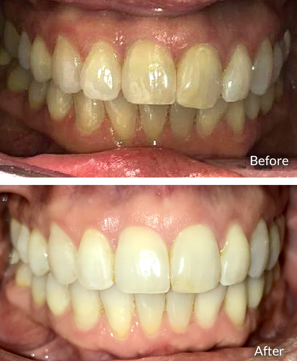 Kate Kennedy, before and after Invisalign treatment.