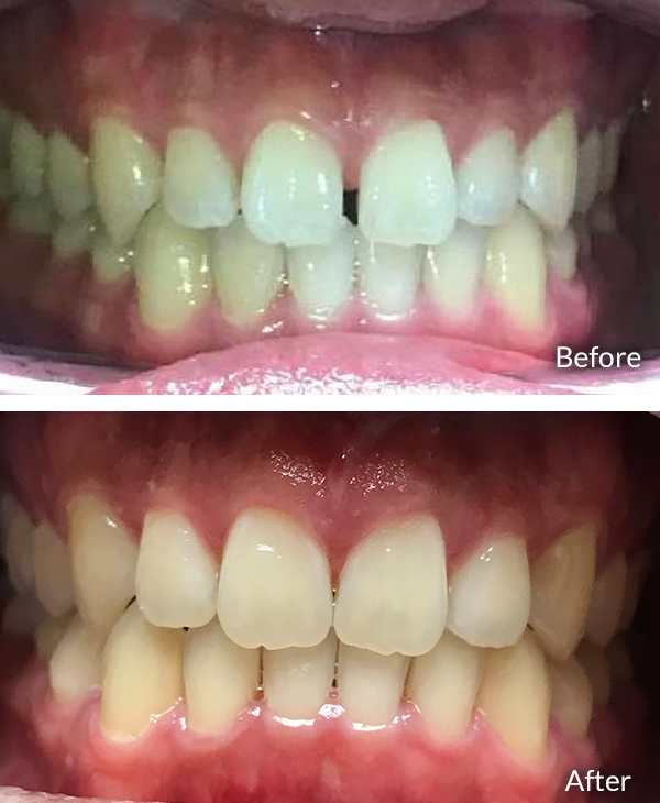 Kevin Liu, before and after Invisalign treatment.