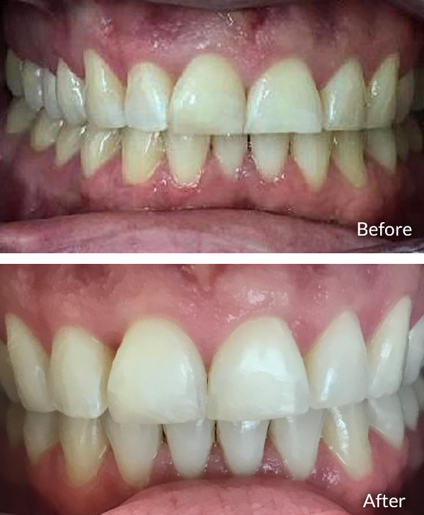Kurt Meyer, before and after Invisalign treatment.