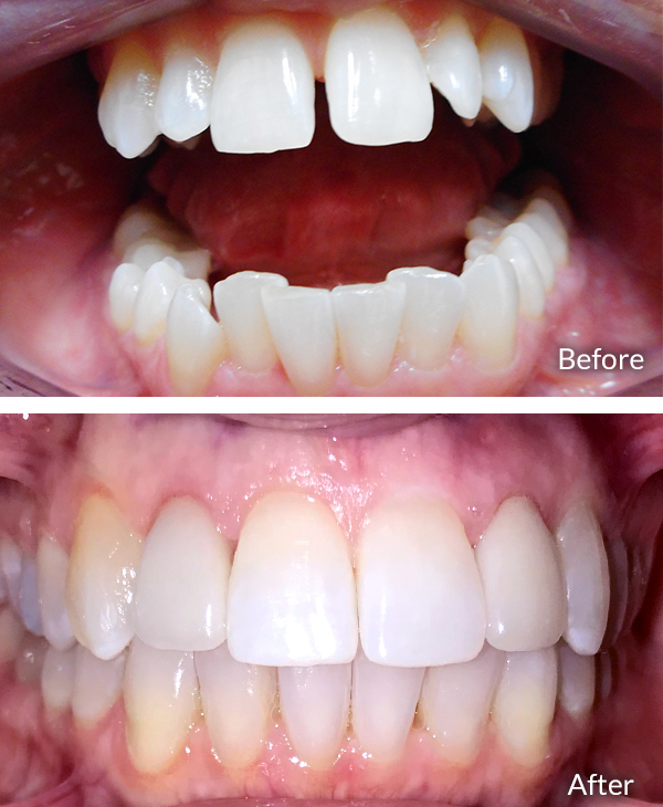 Melissa Berrett, Before and After Invisalign
