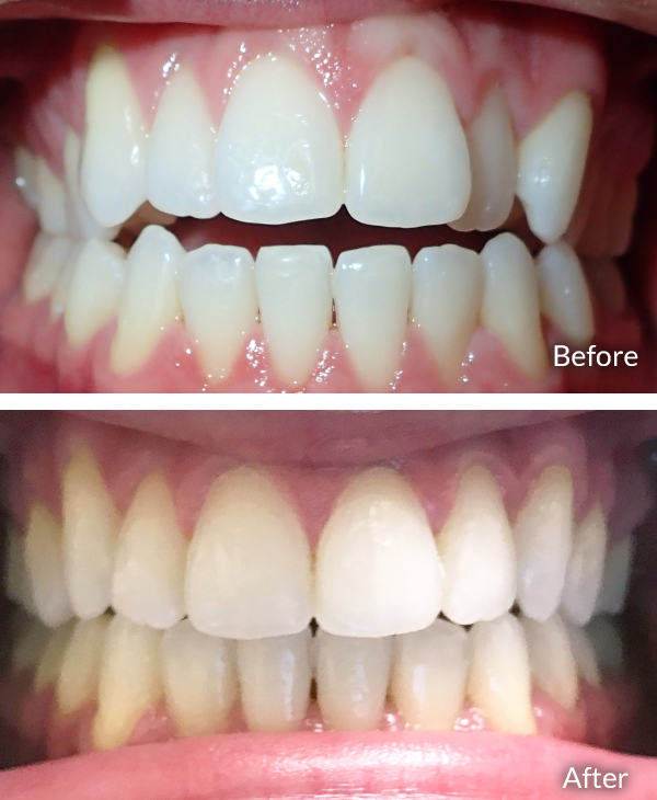 Pablo Aguirre, before and after Invisalign treatment.