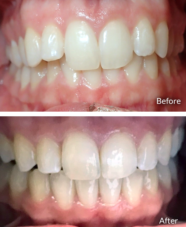 Priyanshi Rastogi, before and after Invisalign treatment.