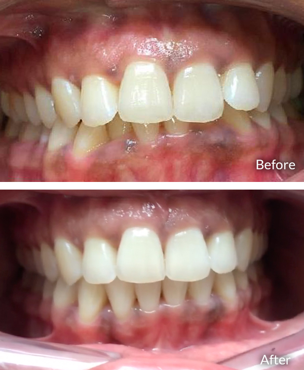 Vattikuli Shrilakshmi, before and after Invisalign treatment.