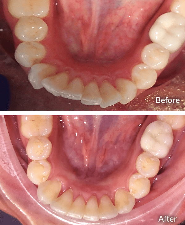 Amy- Occlusal view.