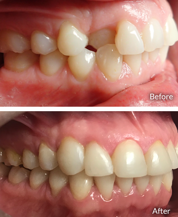 Jessica before and after treatment with Invisalign.