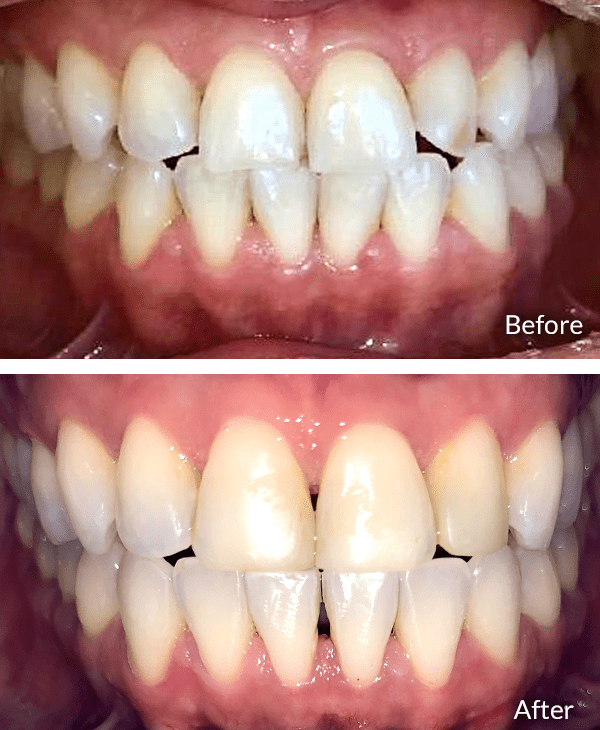 Kim before and after Invisalign treatment.