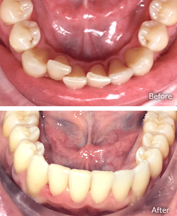 Peter before and after Invisalign treatment.