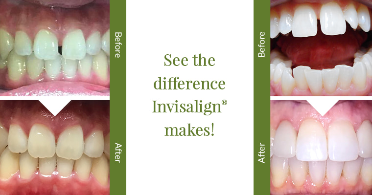 See the difference Invisalign makes! Before and after photos