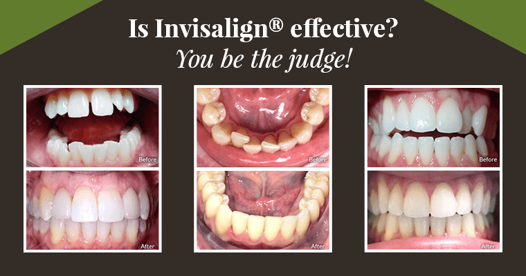 Is Invisalign effective? You be the judge!