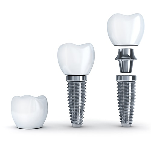 Dental Implants anatomy of the post, abutment, and crown